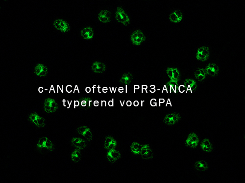 C-ANCA=PR3-ANCA
